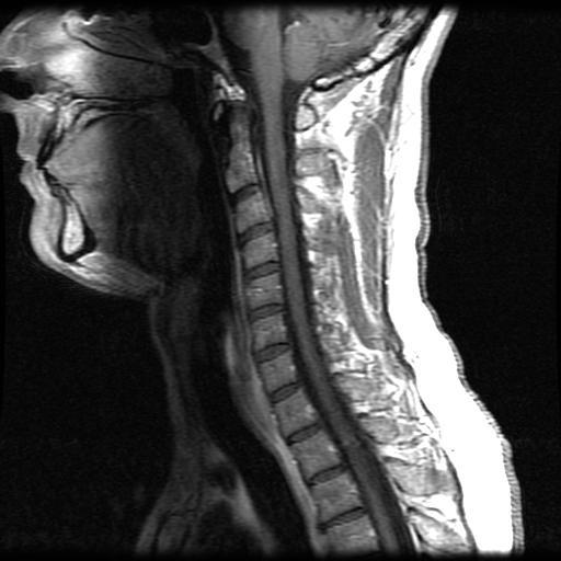 Mri spine sagittal cervical image 6 ccuart Image collections